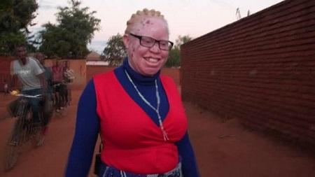 Rose Nsopé, une albinos se préoccupe peu de savoir pour qui voter