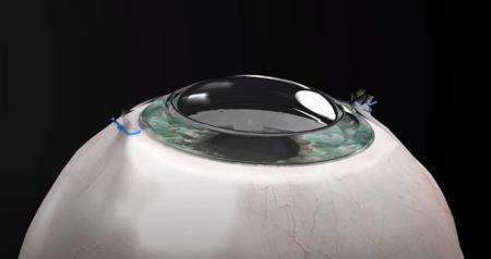 Une nouvelle cornée synthétique permet à un aveugle de recouvrer entièrement la vue